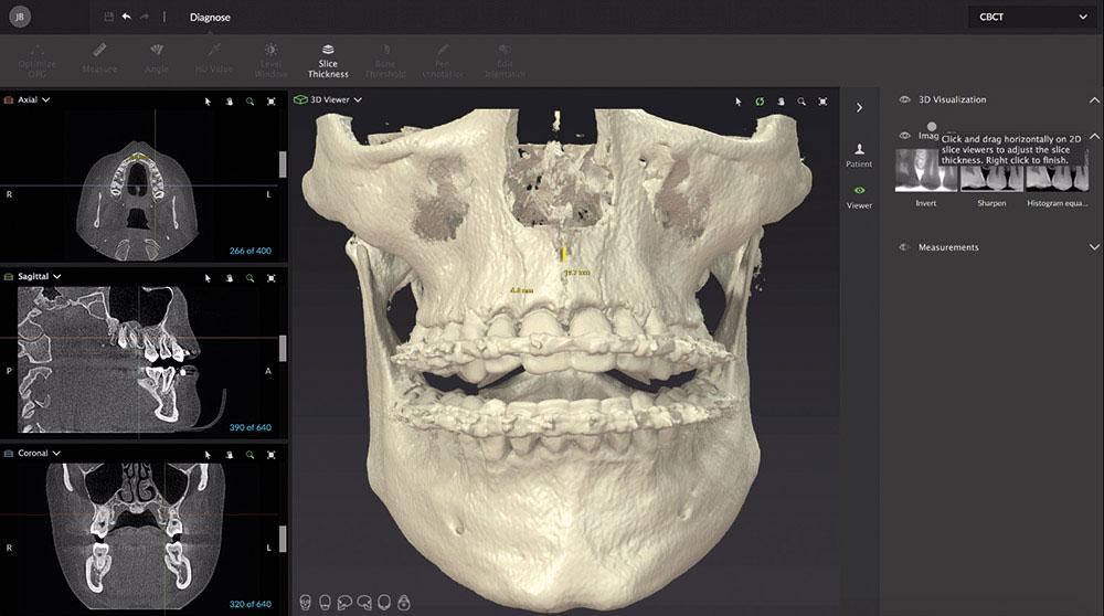 歯科用CTによる分析