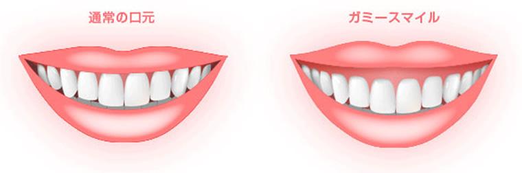 笑うと歯茎が見える ~ガミースマイル~