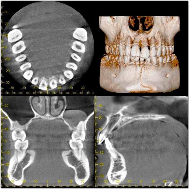 歯や顎の構造を分析 「歯科用CT(三次元立体画像)」