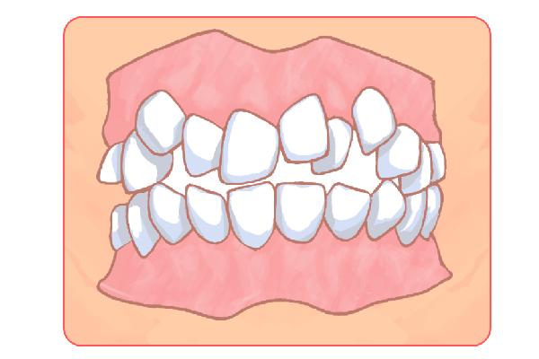 子どもの歯並び矯正にも対応しています!