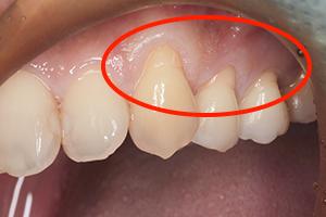 歯肉移植手術:見た目を回復する